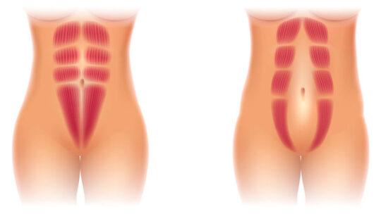 Den gode behandling på Delte mavemuskler